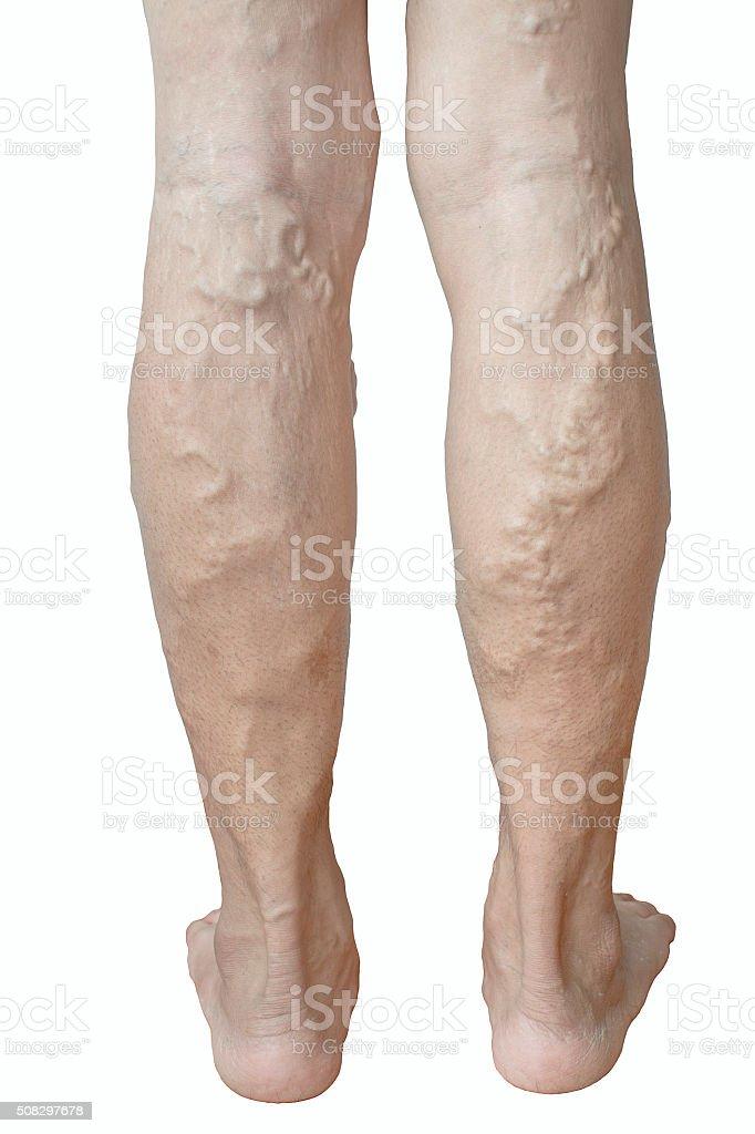 irregular varicose veins stock photo
