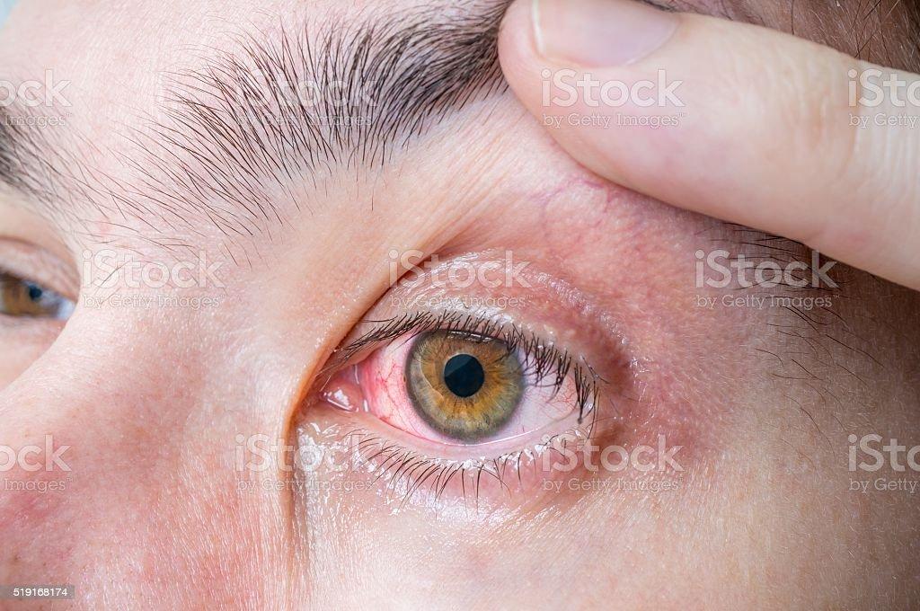 Irritated and injured red eye. stock photo