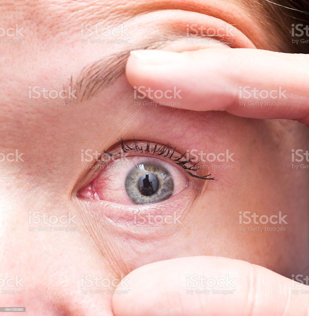 irritated eye stock photo