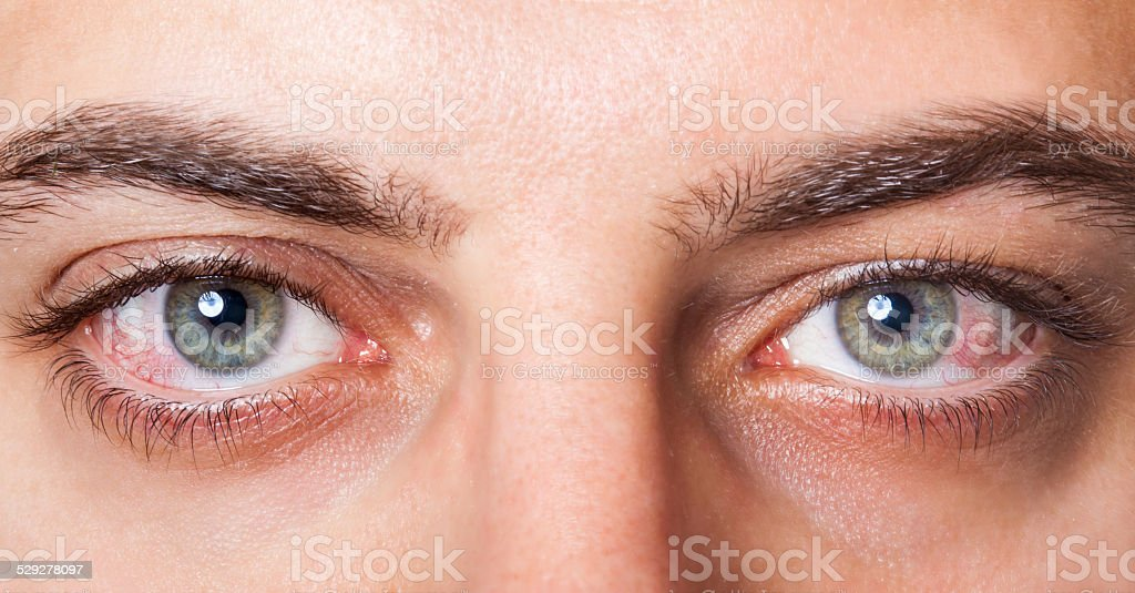 Irritated red bloodshot eye stock photo