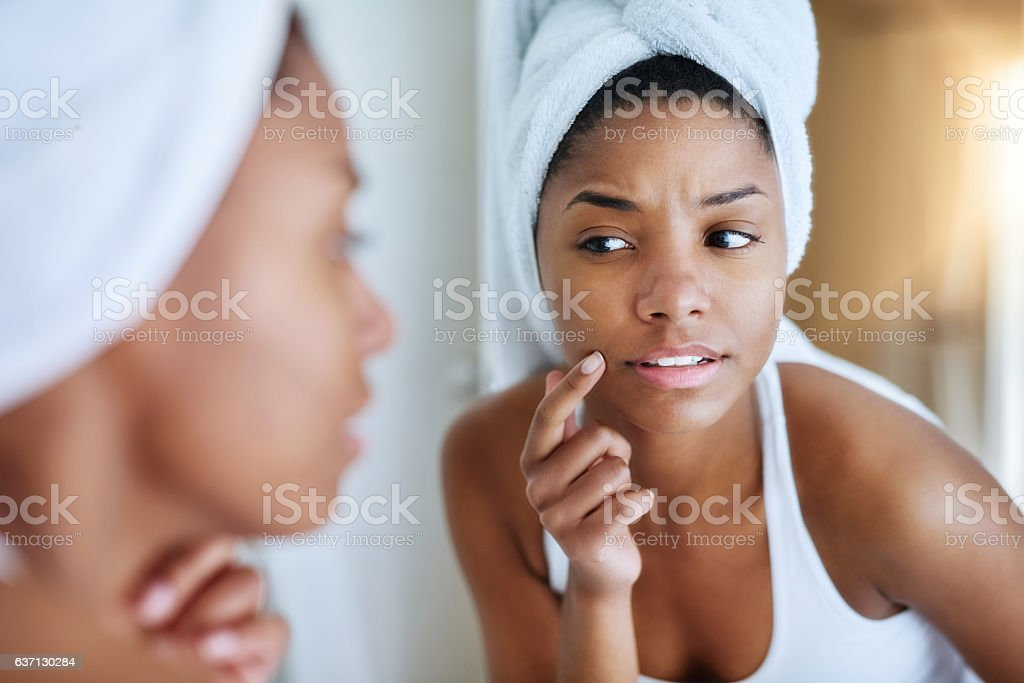 Is my skin starting to breakout? stock photo