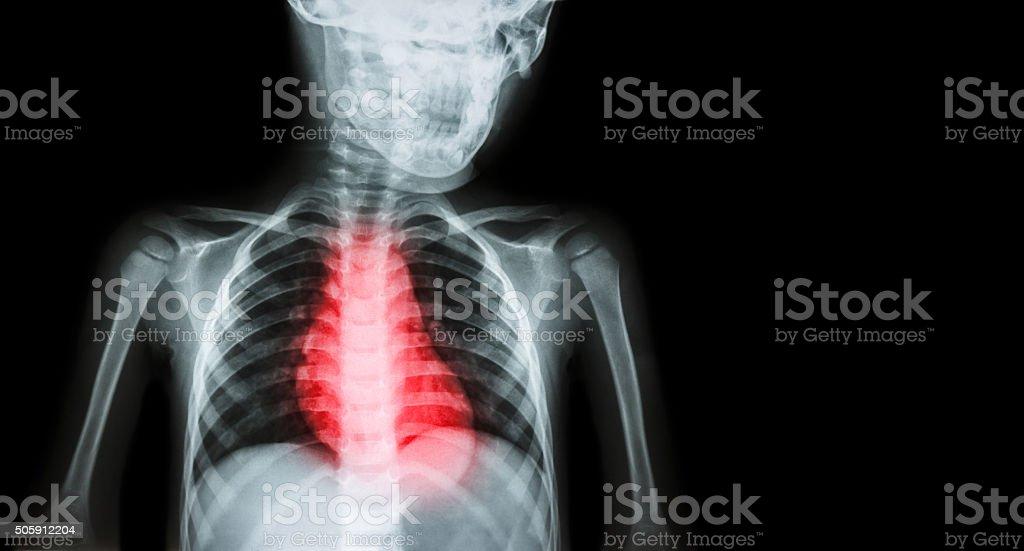 Ischemic Heart Disease , Myocardial Infarction ( MI ) stock photo