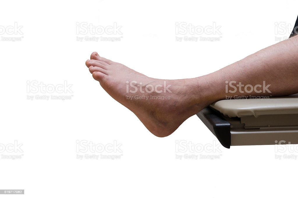 Isolated Broken Foot or Sprained Ankle in Hospital Exam Room stock photo