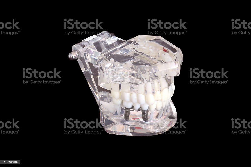 Isolated dental tooth implants in a mold of human jaw stock photo