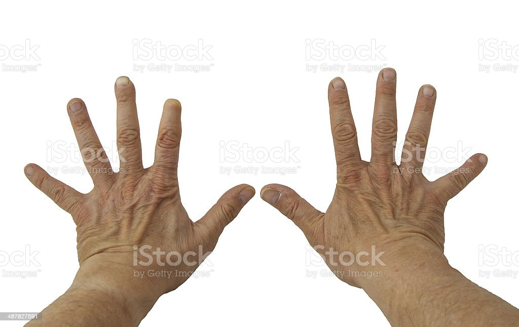 Isolated image of two hands with an amputated finger. stock photo