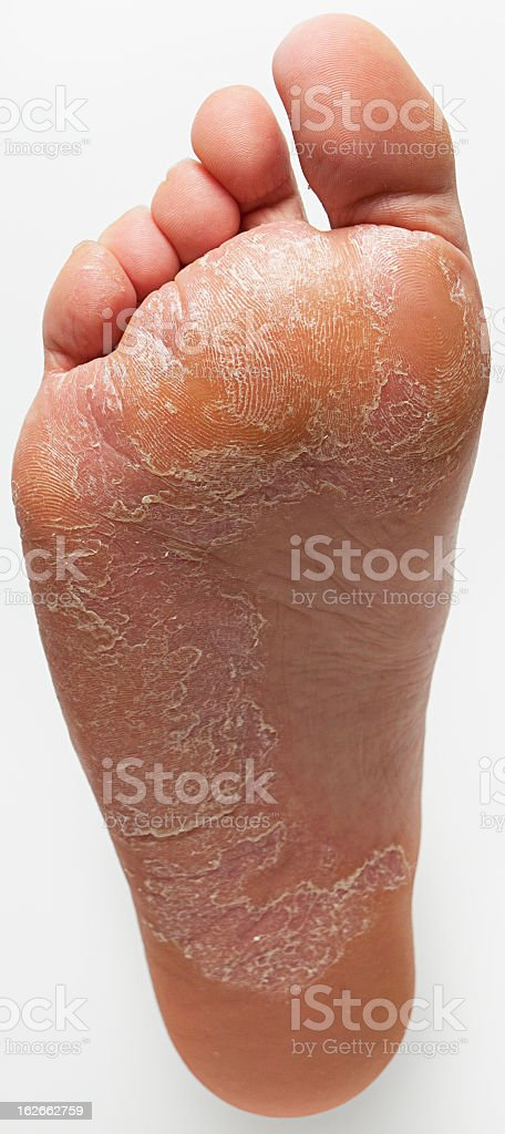 Isolated sole of a foot with extensive Athletes Foot problem stock photo