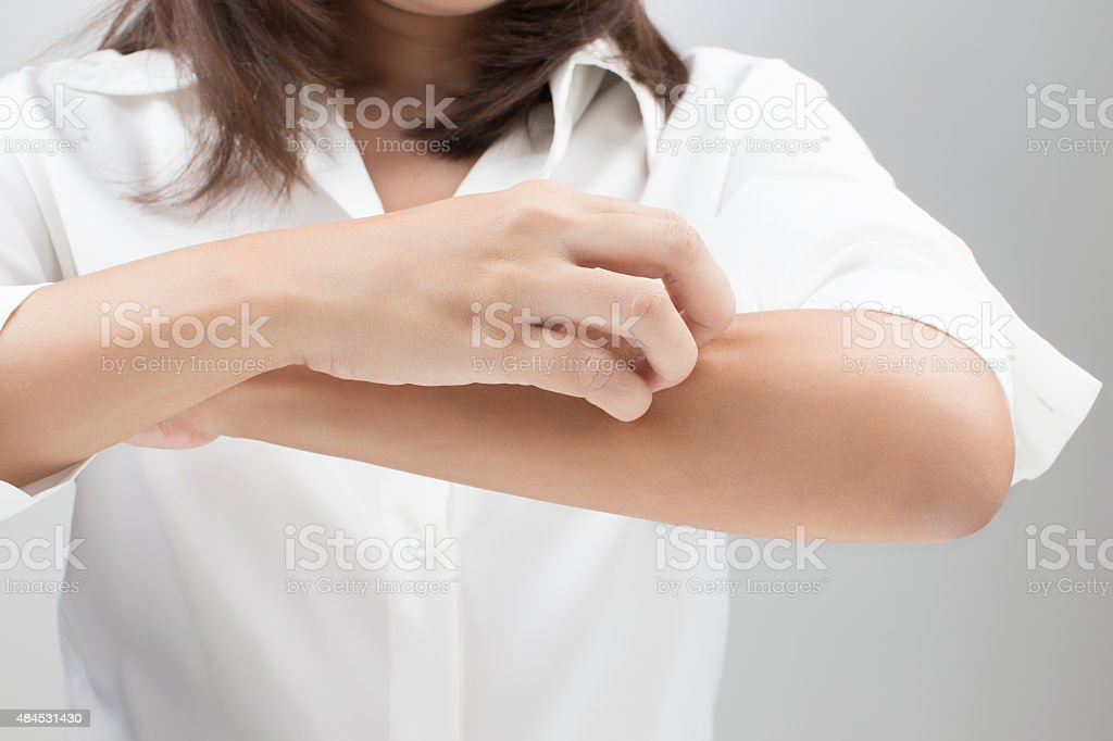 Itching In stock photo