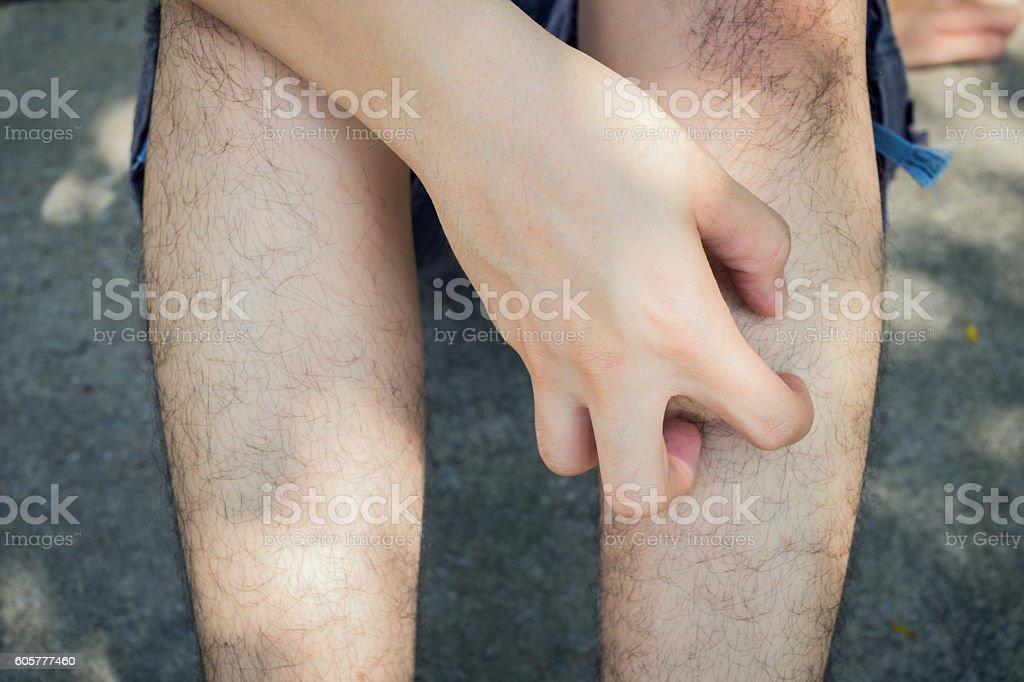 itching stock photo