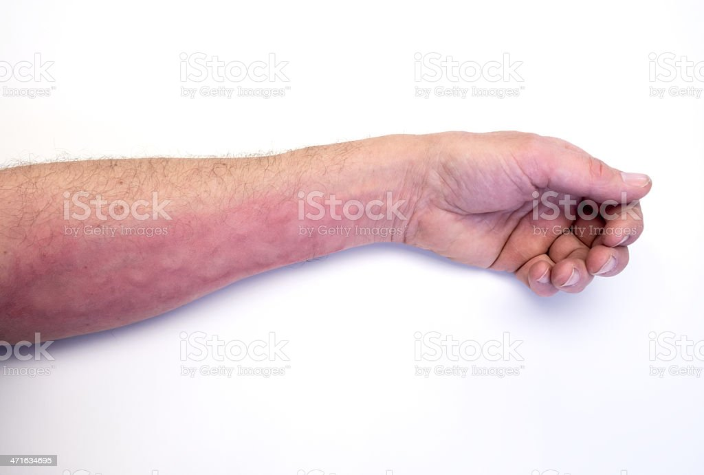 itchy arm stock photo
