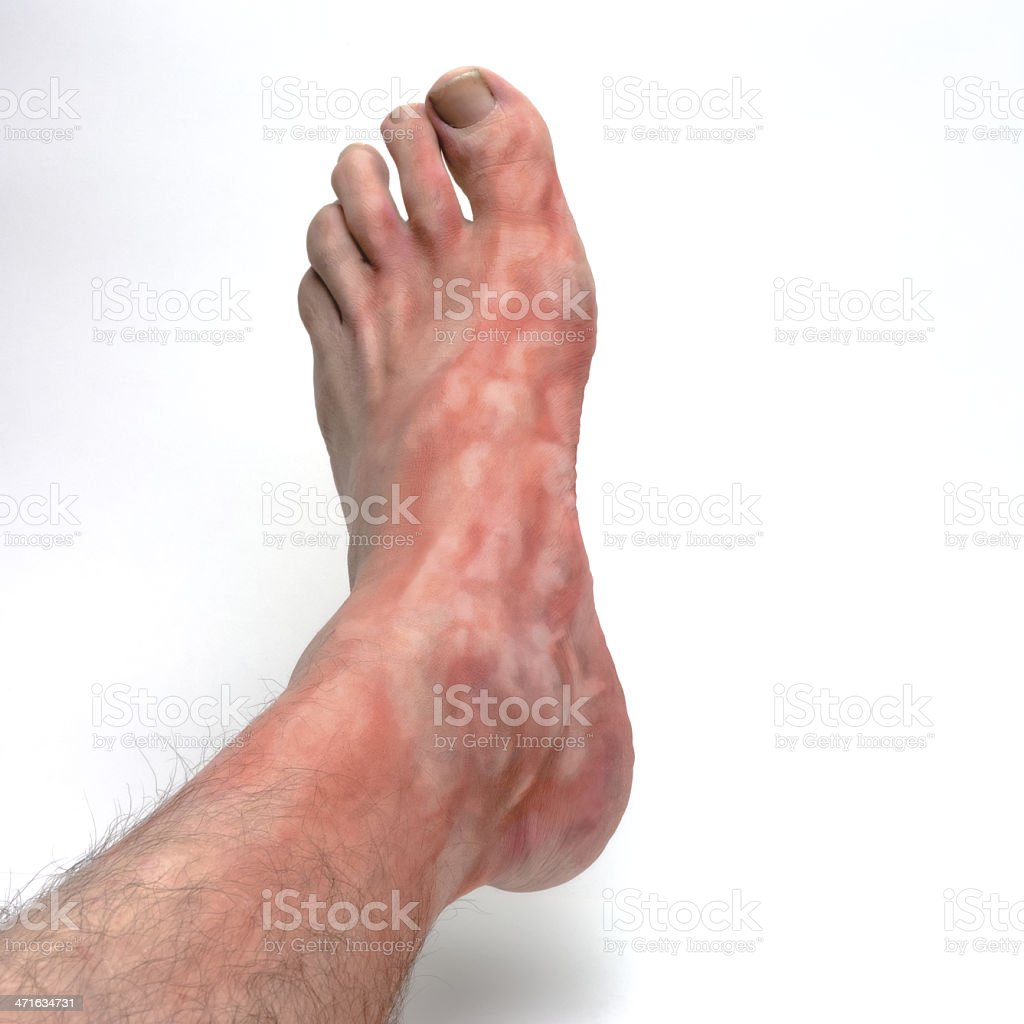 Itchy foot stock photo