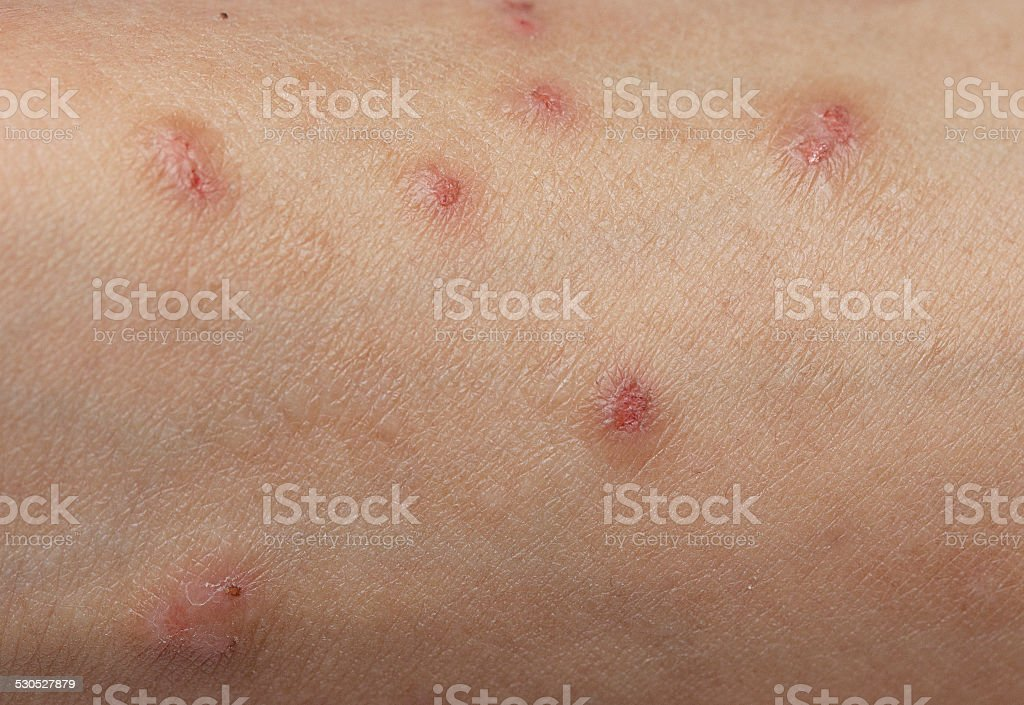 Itchy skin lesions from allergies, skin women. stock photo