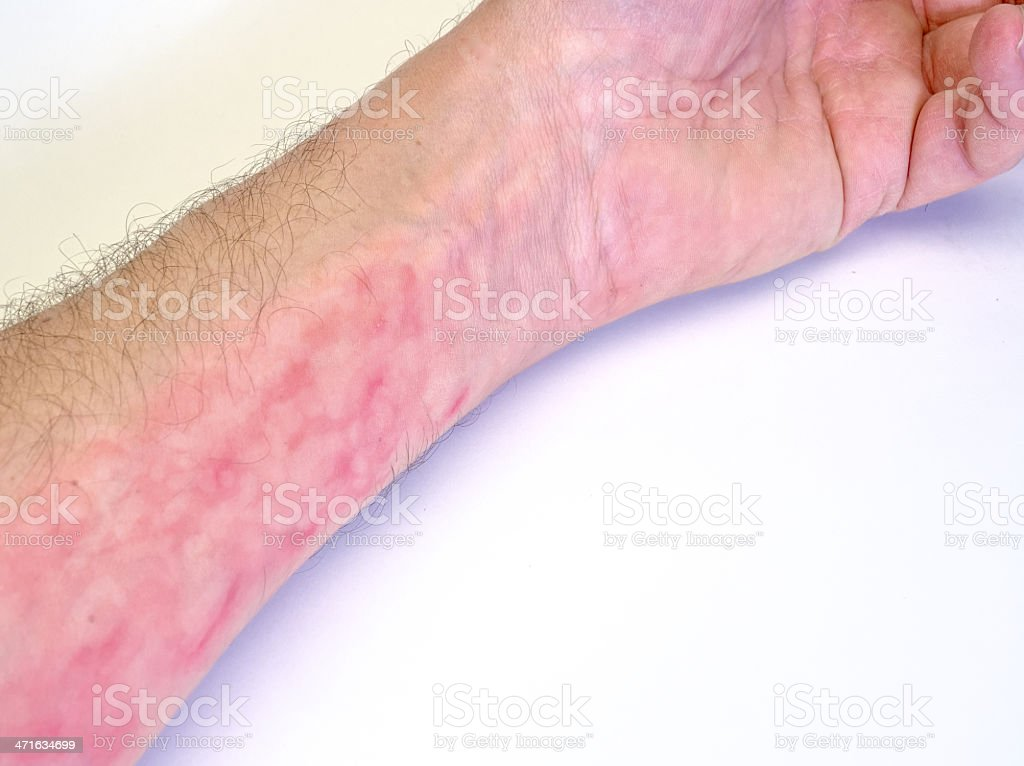itchy wrist stock photo