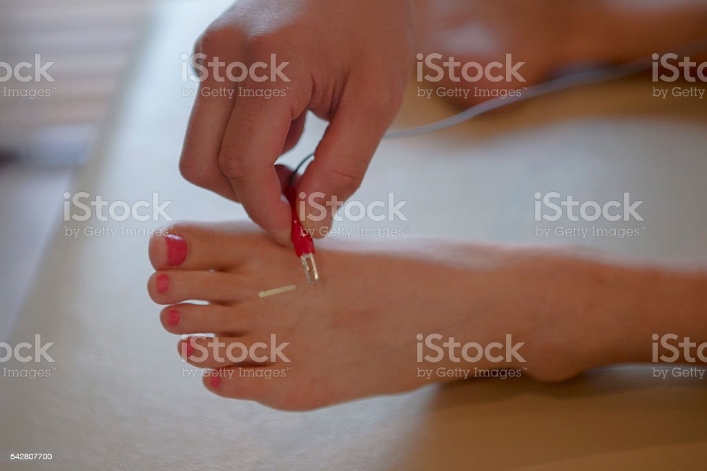 japanese female get acupuncture treatment in kyoto japan stock photo