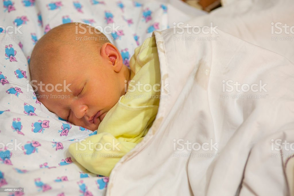 Jaundice in a newborn baby stock photo