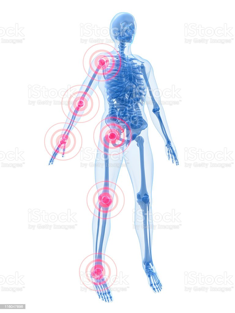 joint inflammation royalty-free stock photo