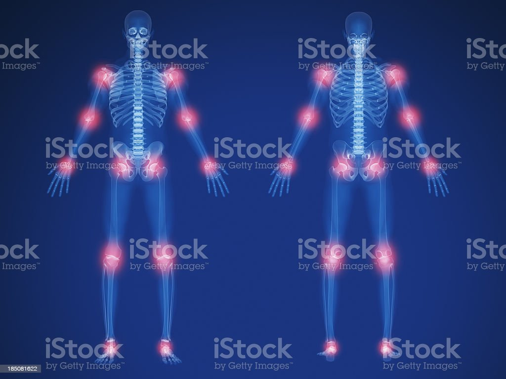Joint pain royalty-free stock photo