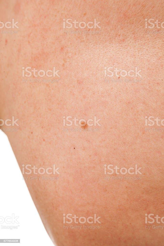 keratinizing squamous cell carcinoma of the skin stock photo