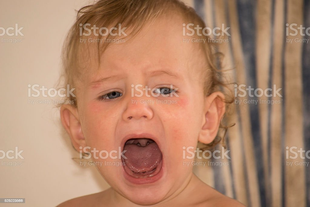 Kid with atopic dermatitis shouts open mouth, throat seen stock photo