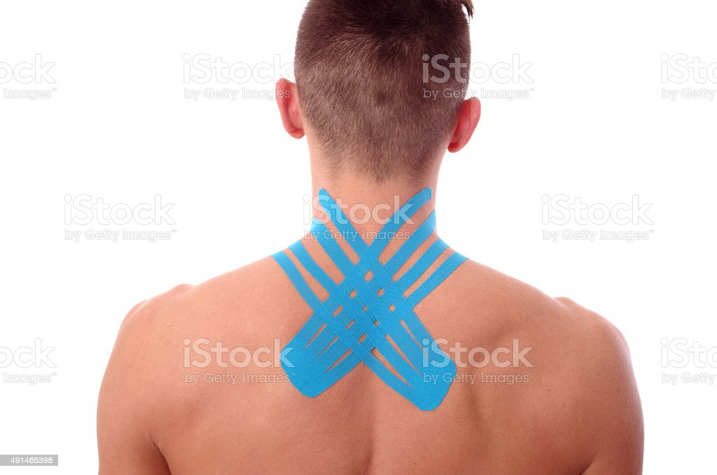Kinesiology tape, Physiotherapy for neck pain, aches and tension, kinesiotape stock photo