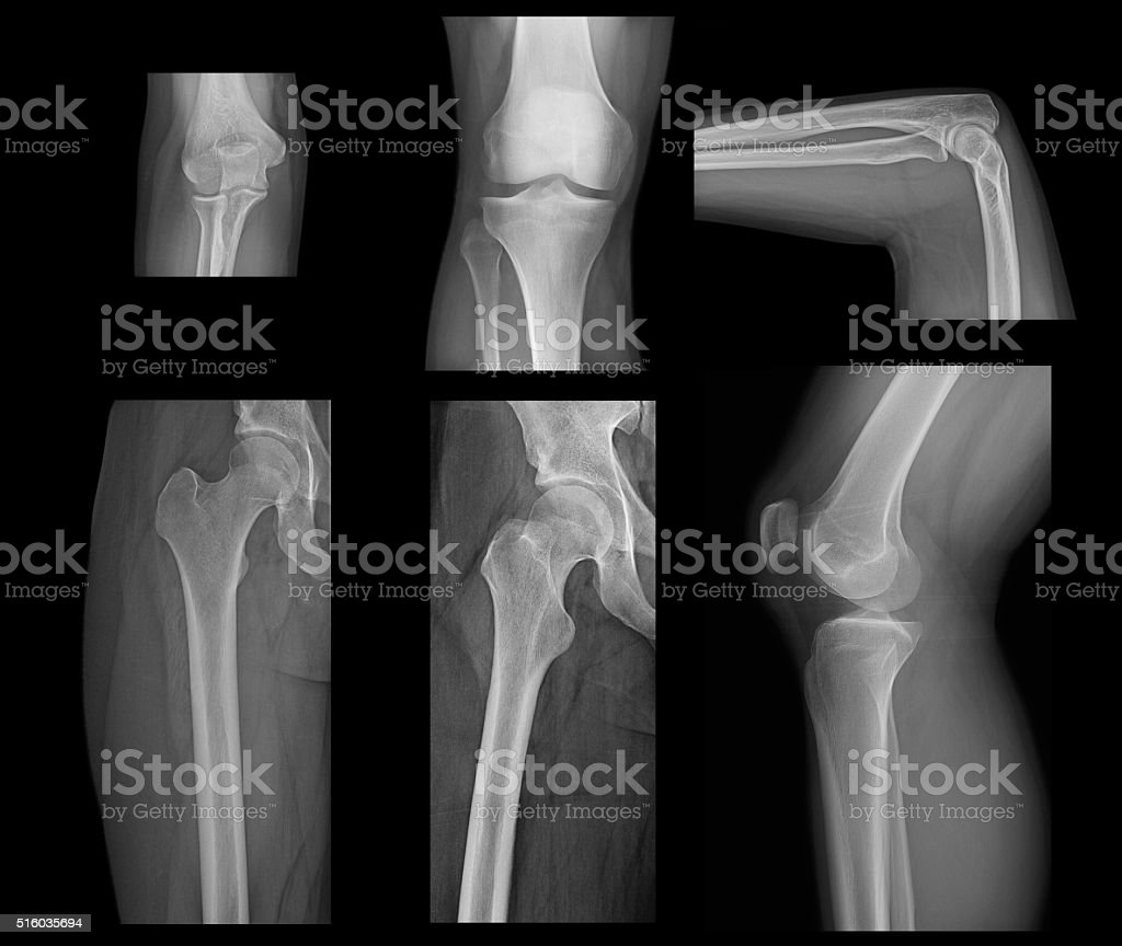 Knee And Elbow X-Ray On Black Background stock photo