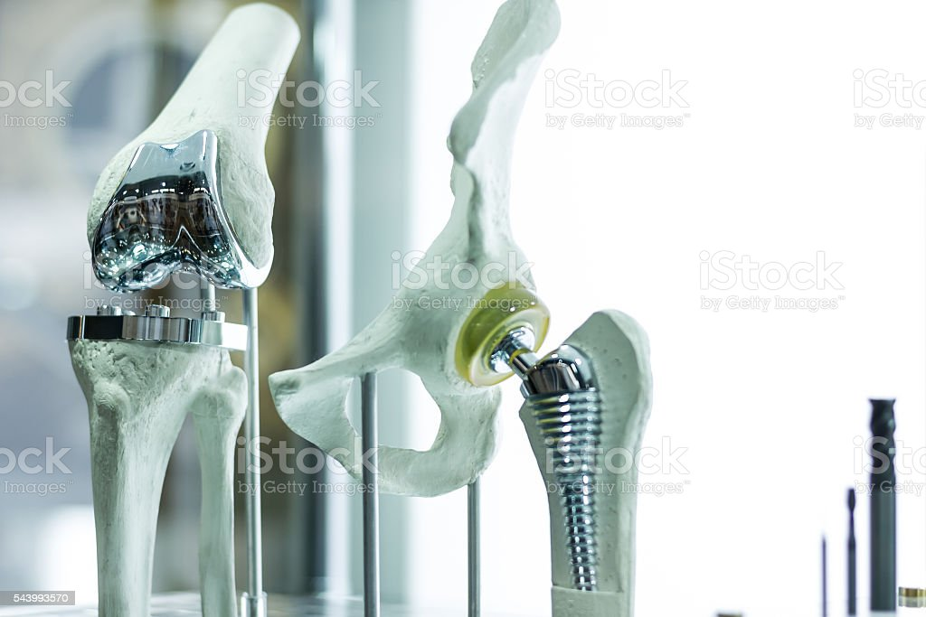 Knee and hip prosthesis stock photo