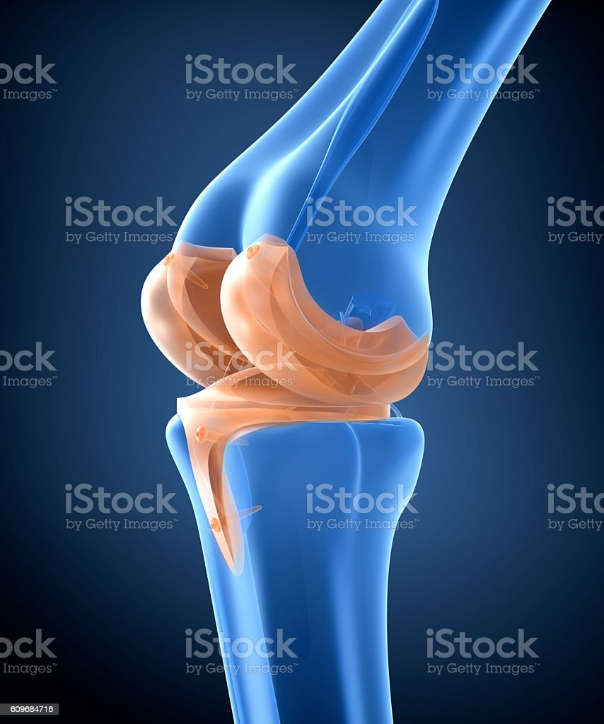 Knee and titanium hinge joint. X-ray view.  3D illustration stock photo