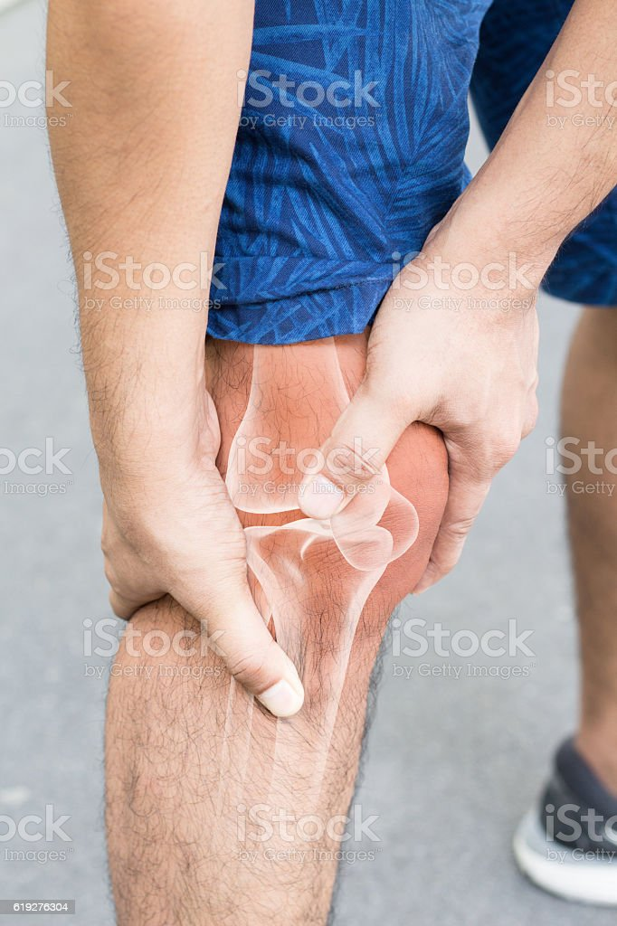 Knee bones injury stock photo
