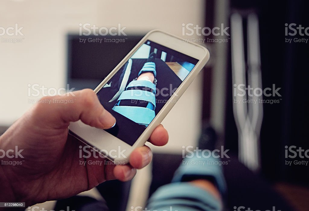 Knee Injury /ACL,PCL/ stock photo