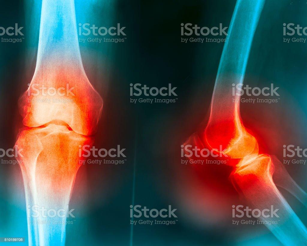 knee joint pain stock photo