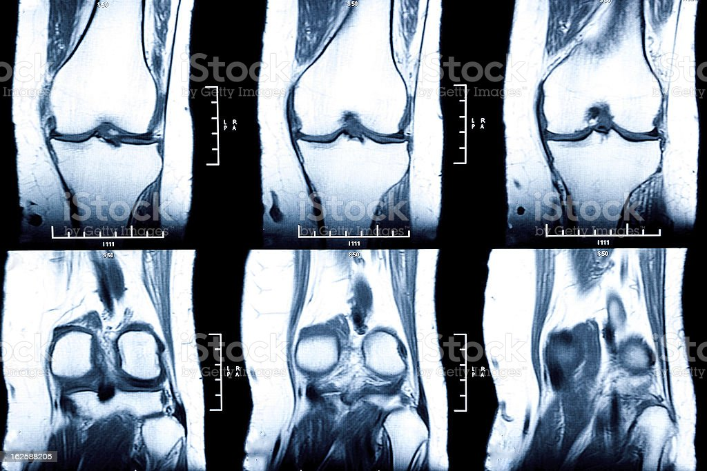 knee MRI - damage of cross and meniscus injury royalty-free stock photo