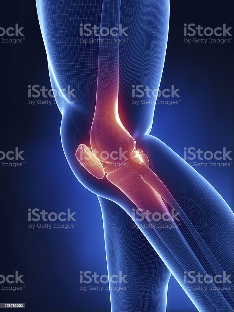 Knee pain in xray look stock photo