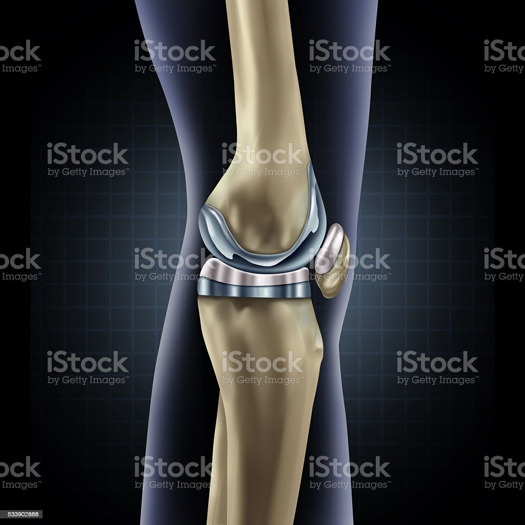 Knee Replacement stock photo