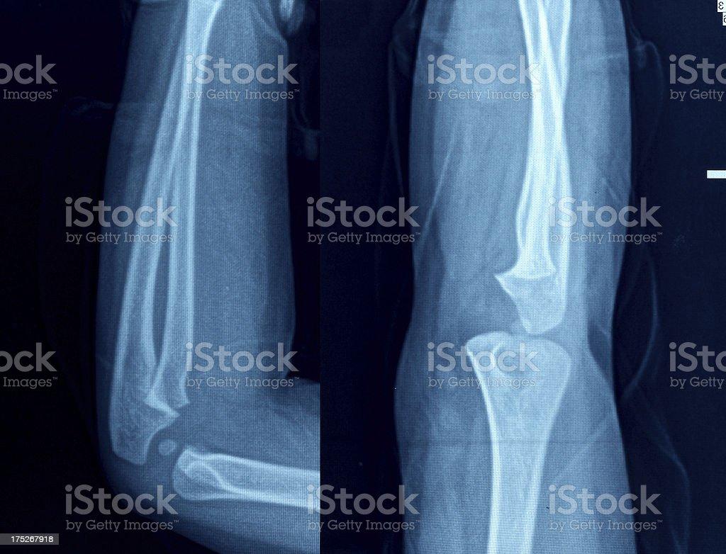 Knee X-Ray Bones Human Leg Anatomy royalty-free stock photo