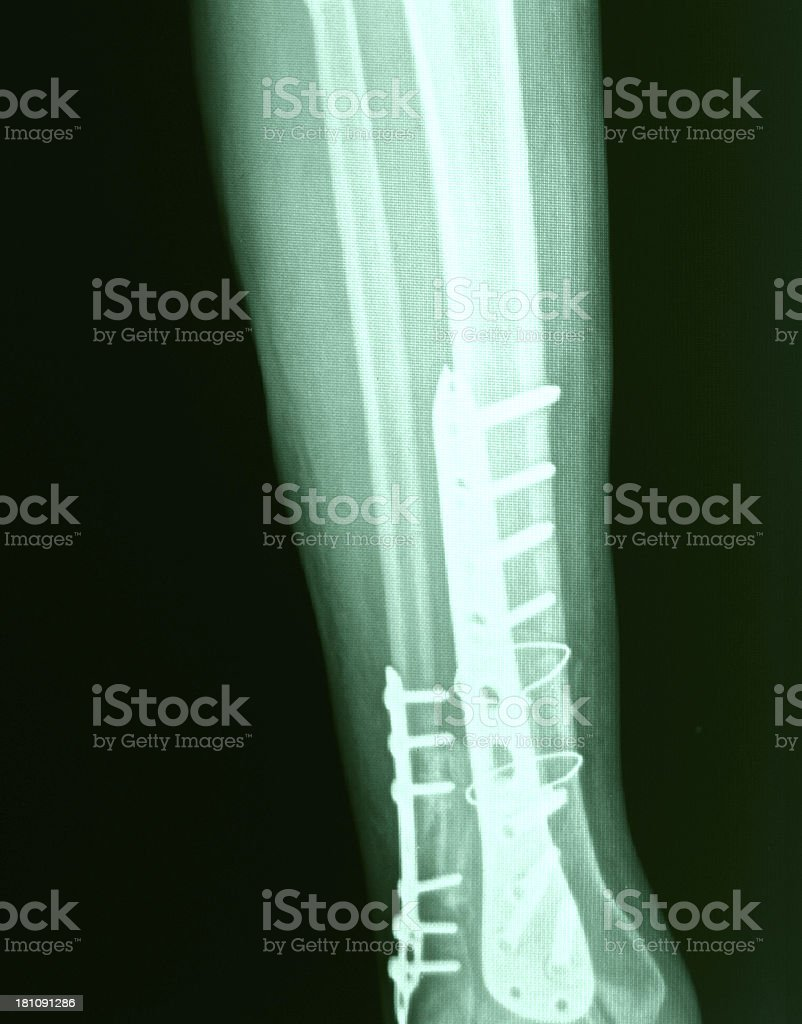 Knee X-Ray Bones Human Leg Anatomy royalty-free stock photo