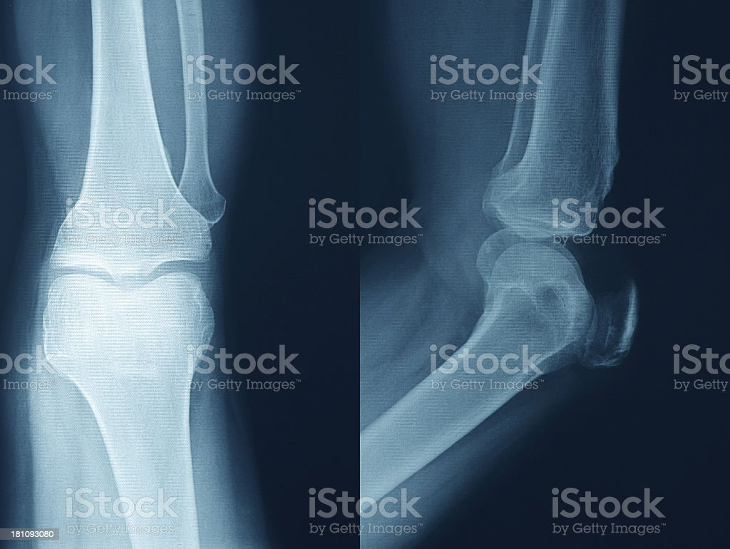 Knee Xray Bones Human Leg Anatomy stock photo 181093080 | iStock