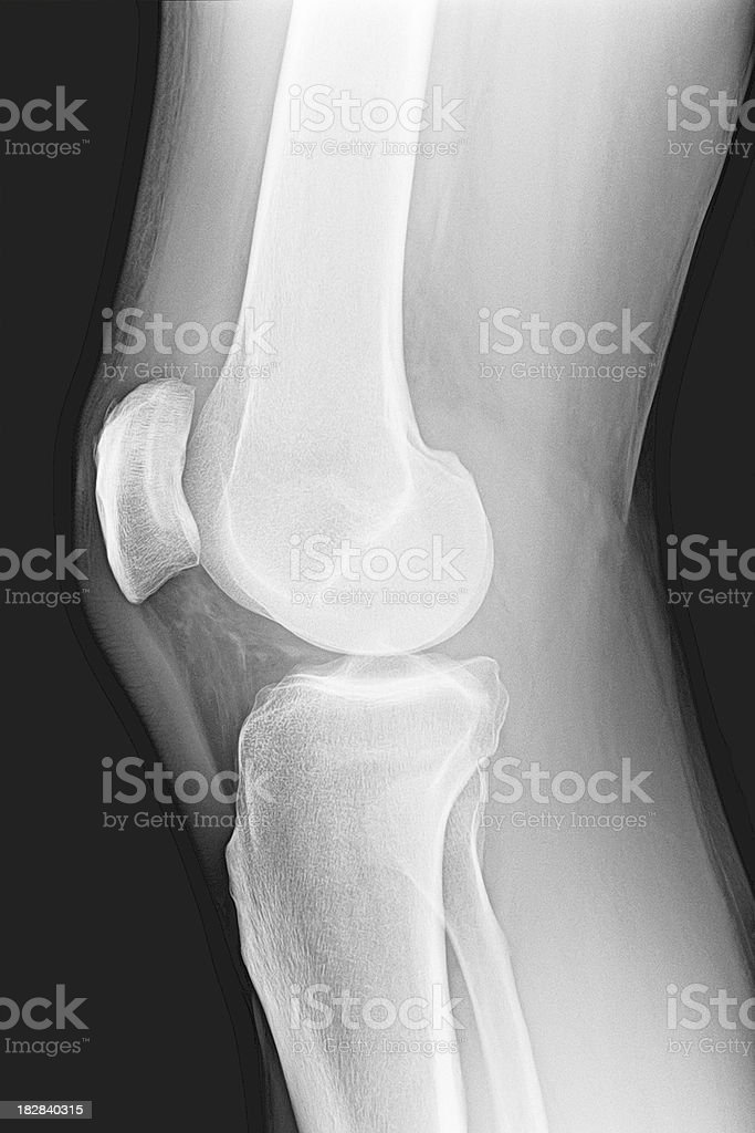 Knee X-Ray Bones Human Leg Anatomy stock photo