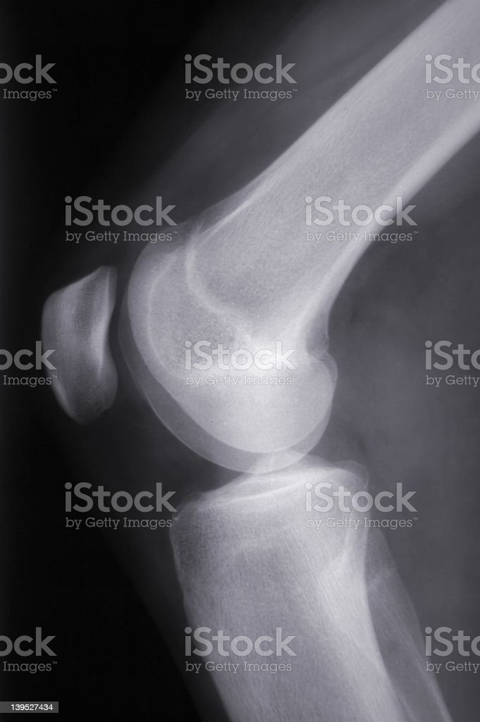 Knee X-Ray (side-view) stock photo