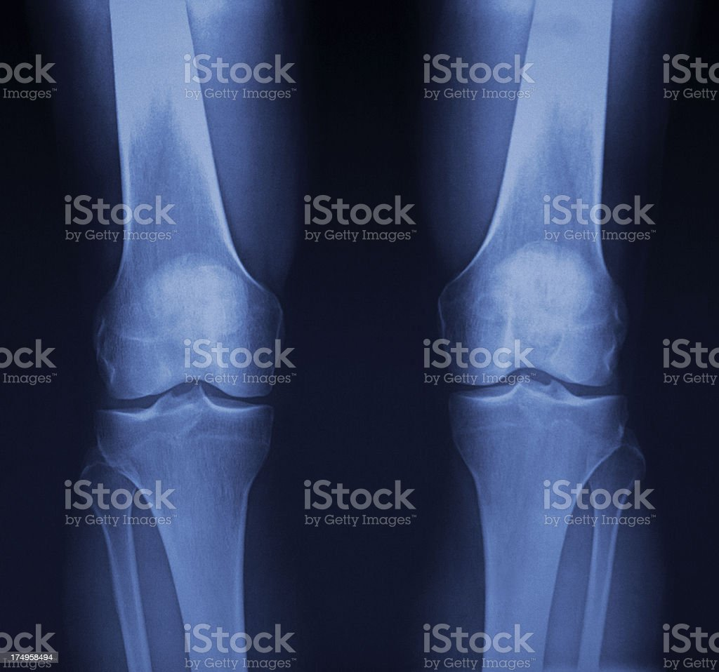 Knee Xray royalty-free stock photo