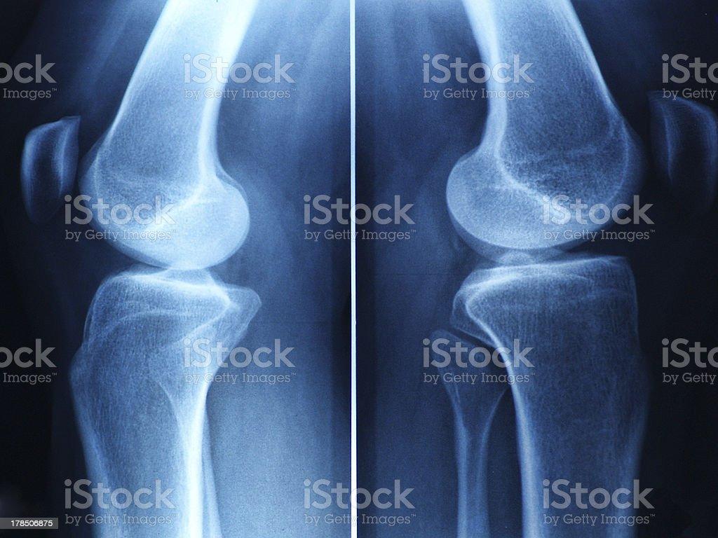 knee x-ray stock photo