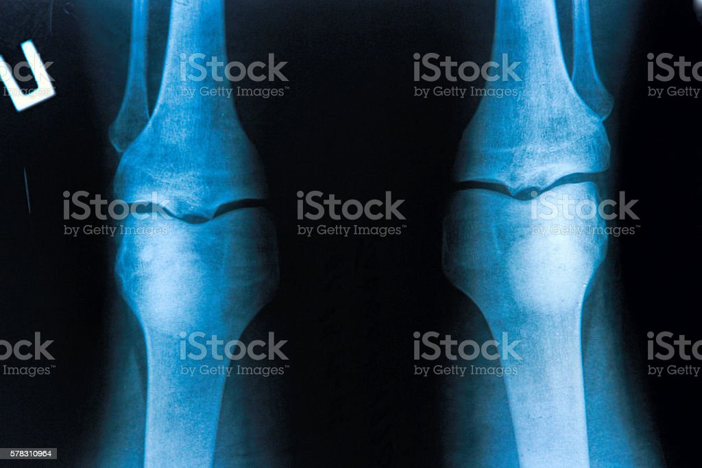 knee x-ray stock photo