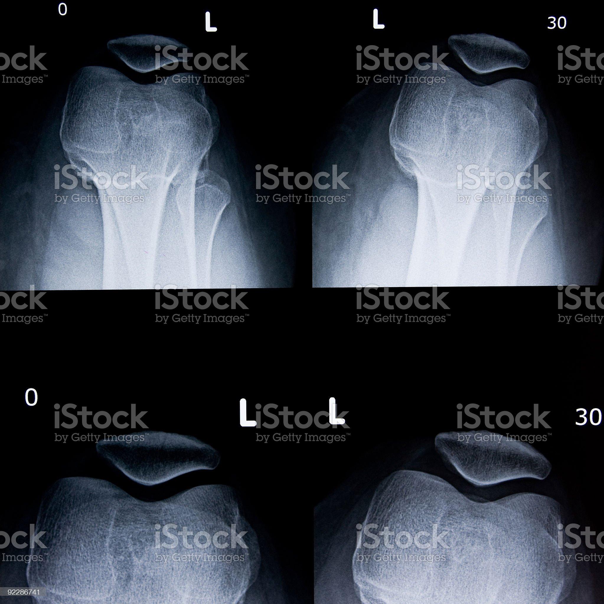Knee X-ray royalty-free stock photo