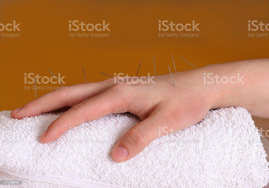 Korean hand acupuncture stock photo