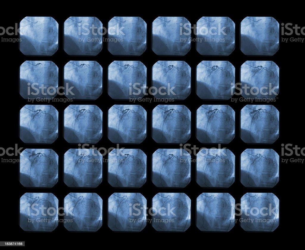 koroner angiography stock photo