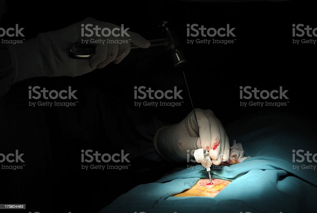 Kyphoplasty Surgery royalty-free stock photo