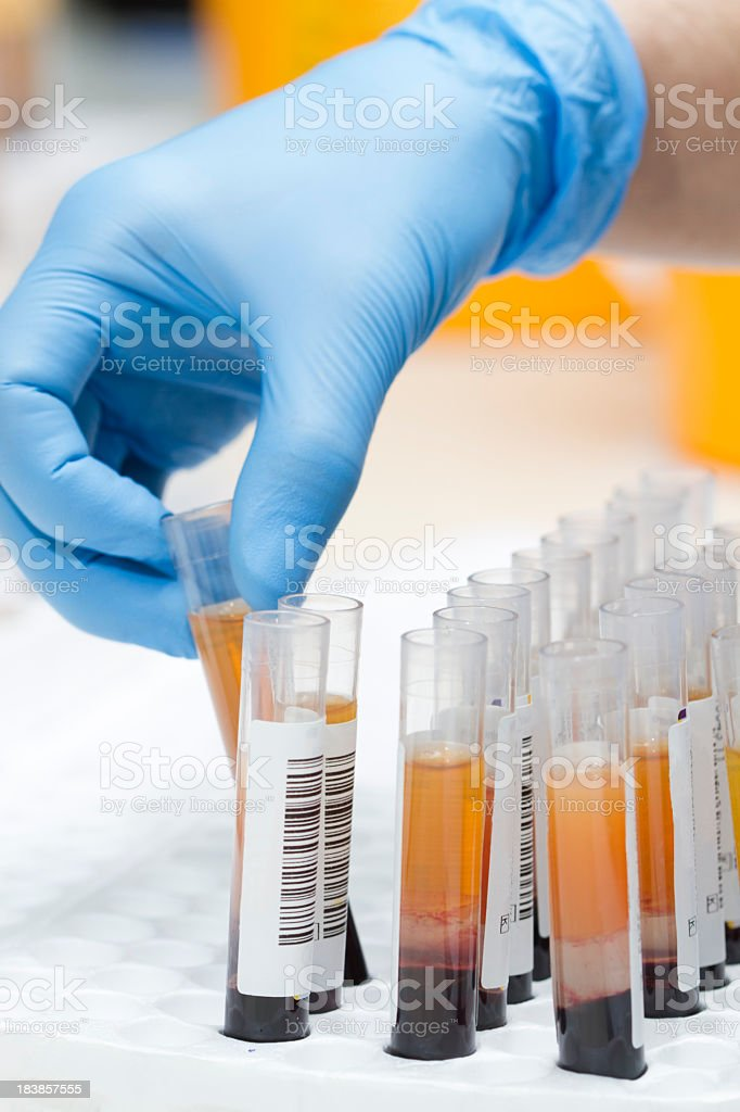 A lab technician with donation tests stock photo