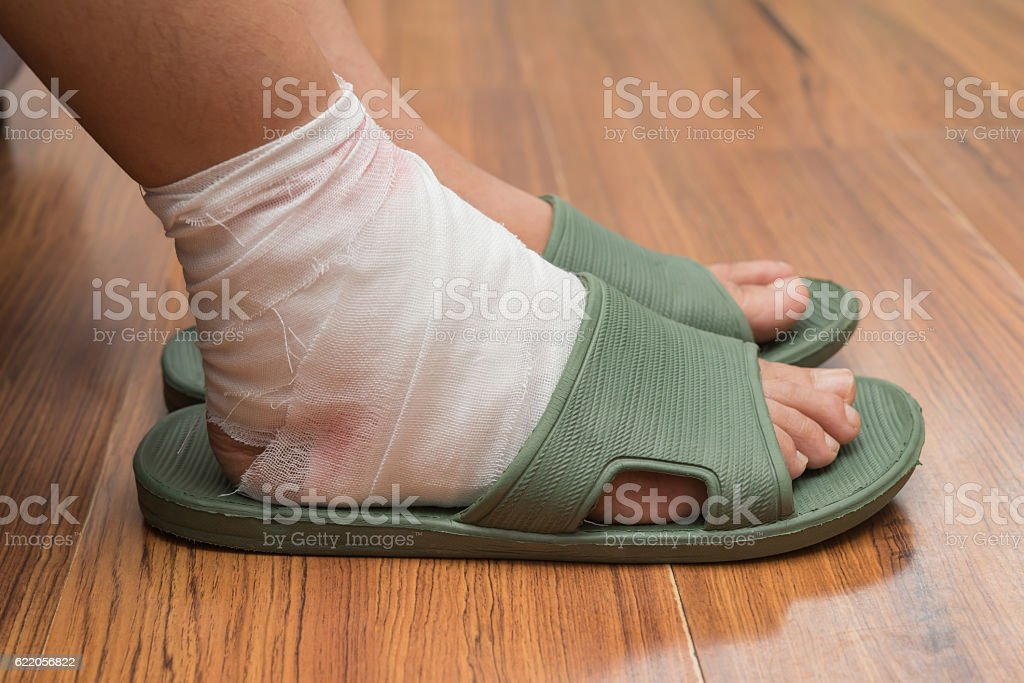 lady with a wrapped foot on floor stock photo