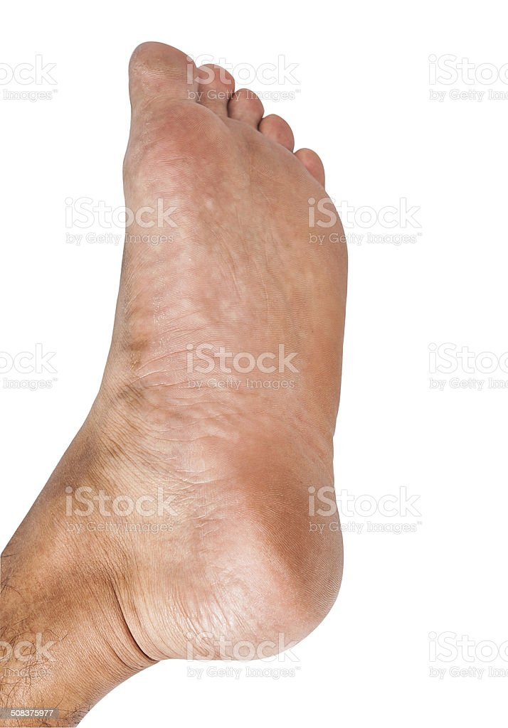 Lap feet or flat foot stock photo