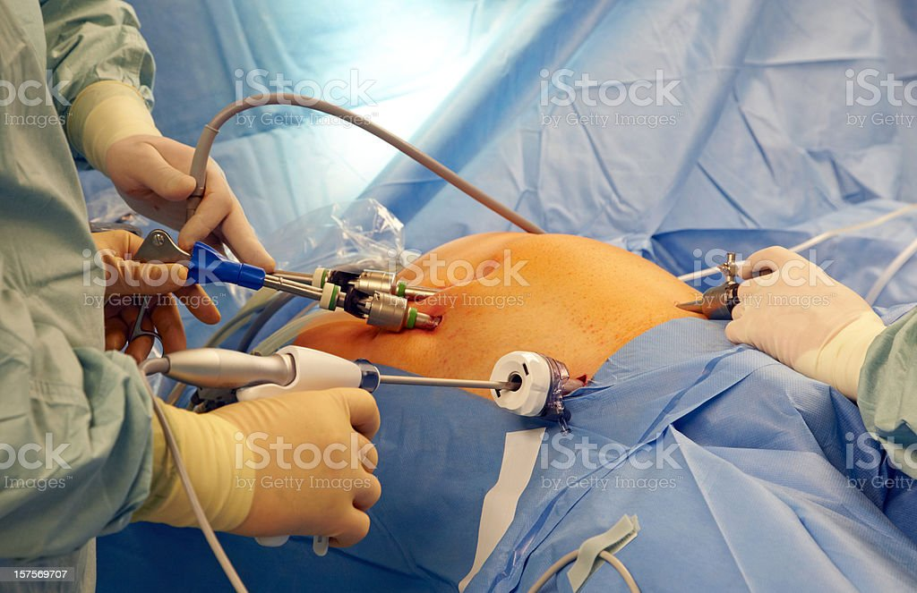 Laparoscopic surgery stock photo