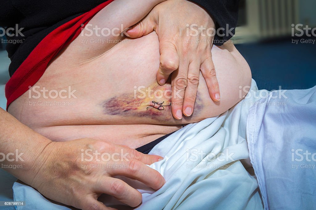 Laparoscopic surgery scars and bruises royalty-free stock photo
