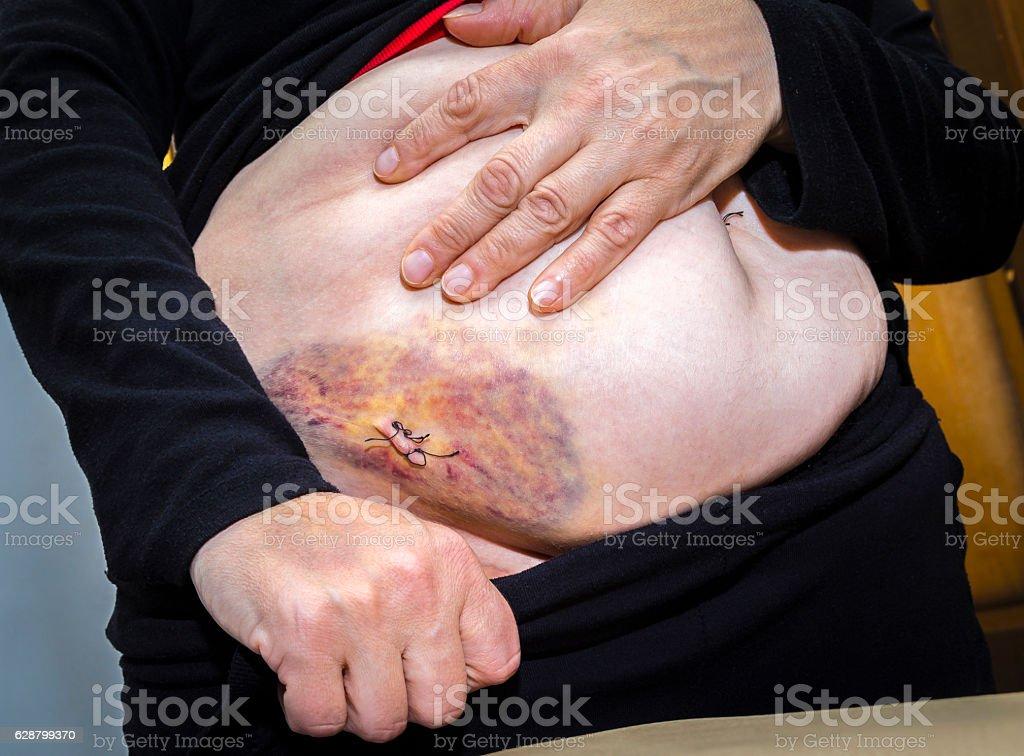Laparoscopic surgery scars and bruises royalty-free stock photo
